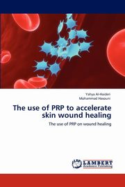 The use of PRP to accelerate skin wound healing, Al-Haideri Yahya